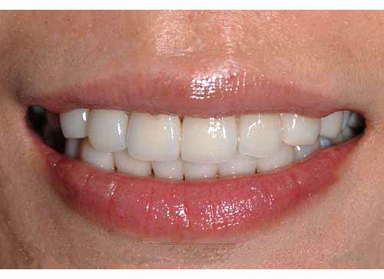 lower teeth veneers before after photos pictures joe liang dds ms dentist